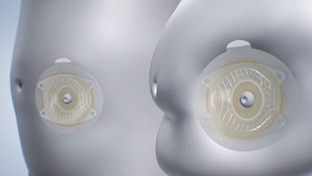 Thumbnail på SenSura® Mio Convex basplatta på magar