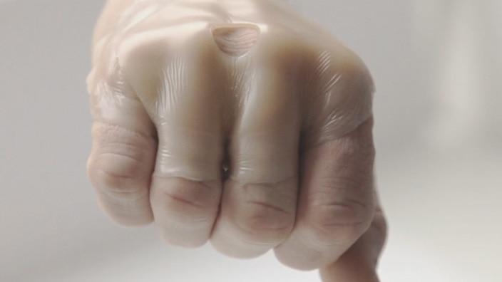 Film om SenSura® Mio - kroppsform