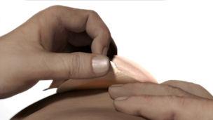 Avlägsna stomibandaget försiktigt