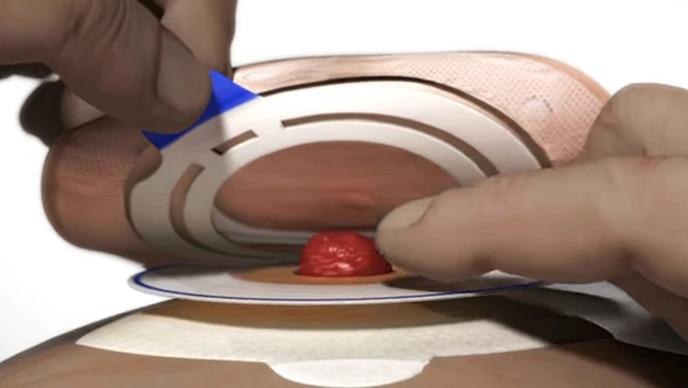 Hur du tar bort ett 2-delsbandage med häftkoppling